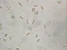 Glomerella cingulata