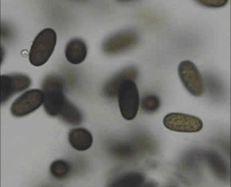 Botryosphaeria (Physalospora) obtusa