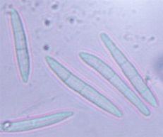 Cercosporella rubi