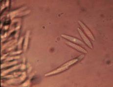 Botryosphaeria dothidea