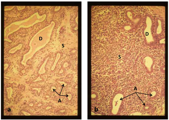 Figure 3a. Portion of mammary parenchymal