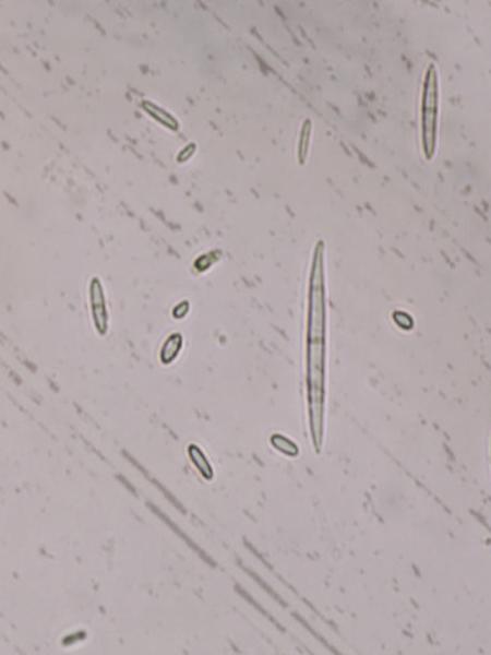 Microscopic image of microconidia and macrocondia of Fusarium oxysporum f. sp. niveum.