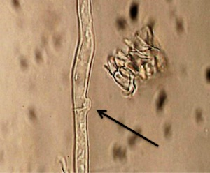 Fig. 5. Clamp connection in hyphae