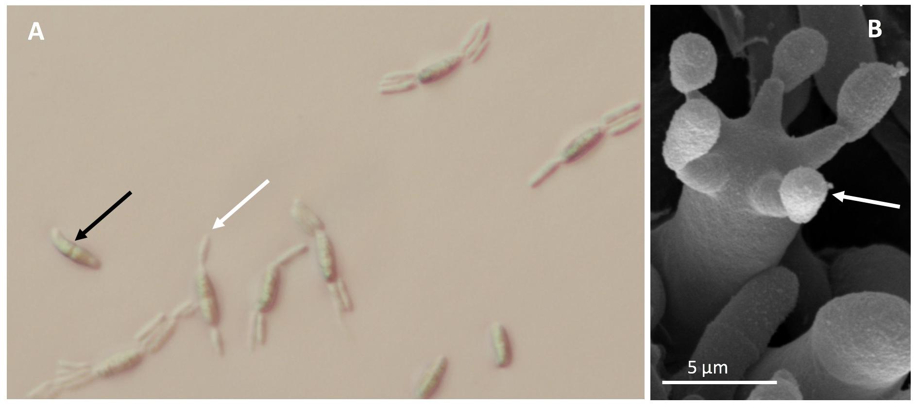 Basidiospores germinating