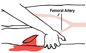 Applying pressure to femoral artery