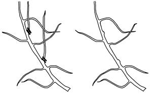 图2.去除直立的剧烈芽,留下较少的剧烈果实。