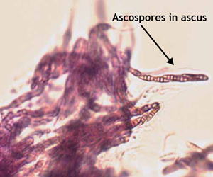 Figure 1. Ascospores (top image) and conidia (bottom) at 400X magnification.