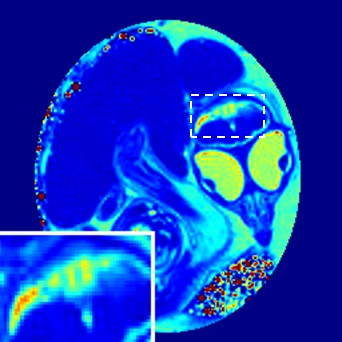 This photo represents pseudo-colored MRI T1 maps of a Zika-infected chicken embryo. The embryo was infected with the Zika virus at a time associated with the first trimester of a human pregnancy. The photo captures a well-developed chicken embryo within the egg, and lesion within the brain, attributed to the Zika virus infection.