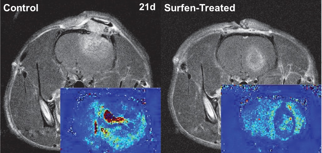 MRI imaging showing the control vs. the surfen-treated example. (Photo provided by UGA Regenerative Bioscience Center)