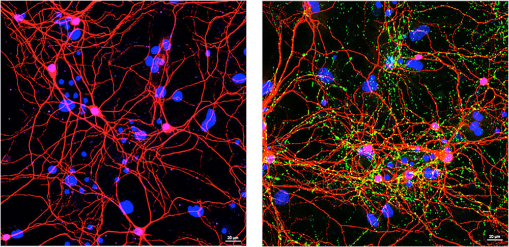 Left, imaging of healthy neurons from mouse brain. Right, imaging of damaged neurons by PD protein clumps.